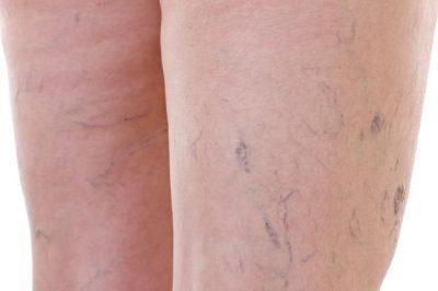 lazer kılcal damar tedavisi